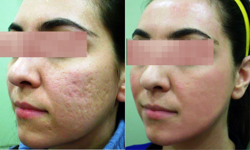 tratamiento del acné con láser en Badajoz precio
