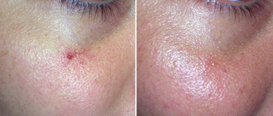ratamiento para quitar microangiomas de la cara, antes y después de eliminar microangiomas de la cara