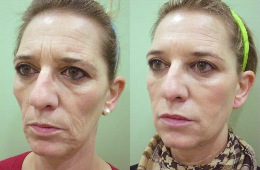 Antes y después de tratamientos de rejuvenecimiento facial
