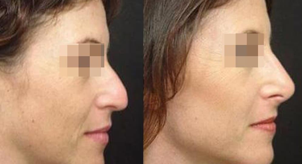 Rinoplastia sin cirugía antes y después