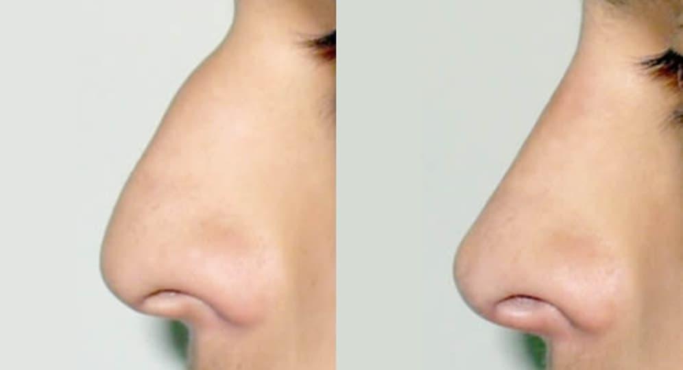 Rinomodelación antes y después
