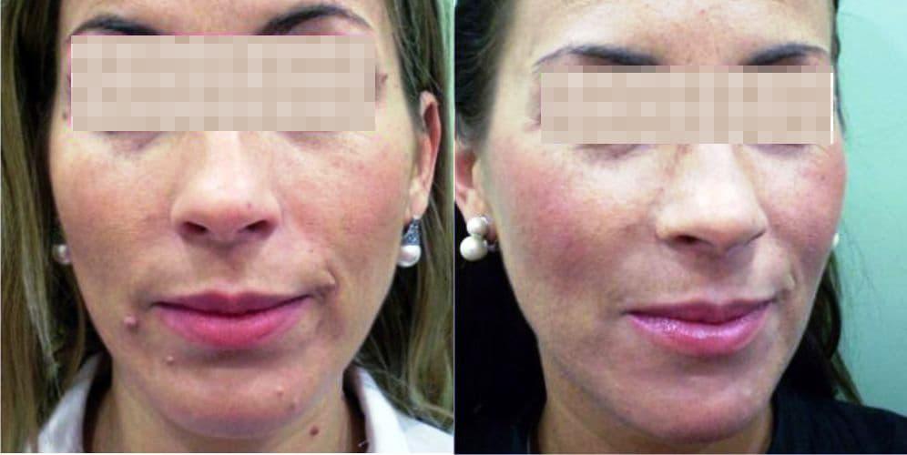 quitar verrugas de la cara con láser, tratamiento de verrugas con láser, tratamiento de eliminación de verrugas y lunares, clínicas especializadas en quitar verrugas