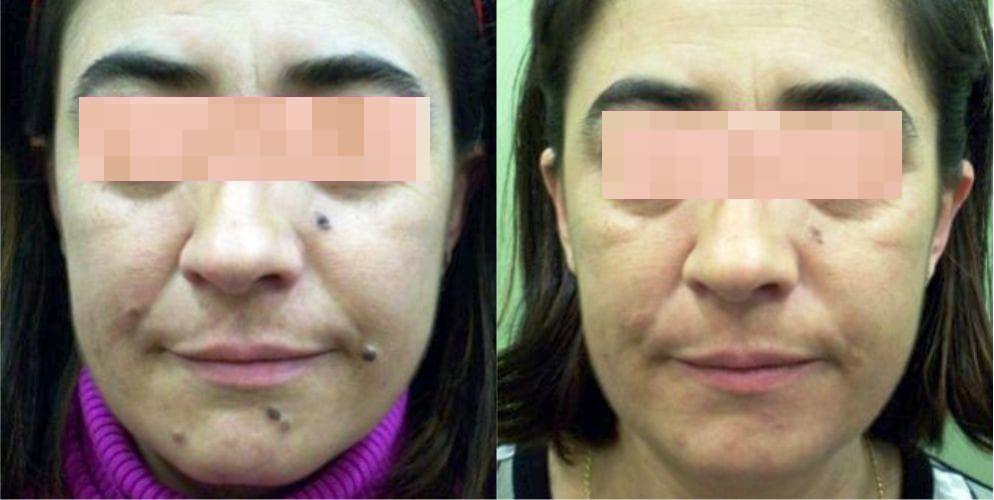 eliminar verrugas en Cáceres, precio quitar verrugas en clínica de Badajoz, tratamiento de verrugas en Salamanca