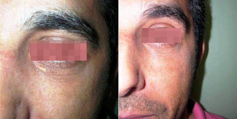 siringomas tratamiento, antes y después de tratamiento de siringomas con láser, eliminar siringomas precio