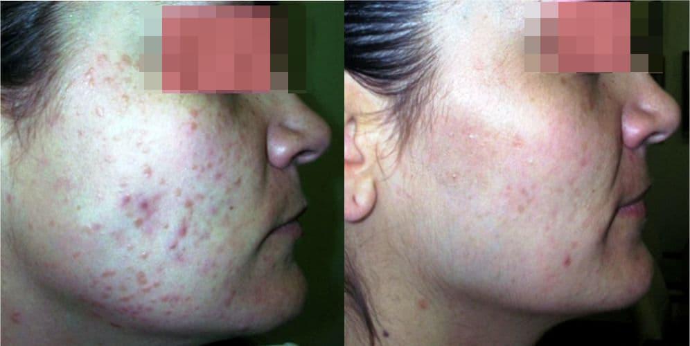 foto del antes y después tratamiento de manchas de acné, precio eliminación manchas acné