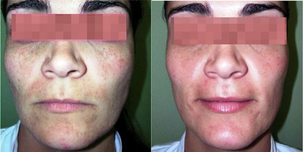 siringomas en la cara tratamiento, eliminación de siringomas con láser