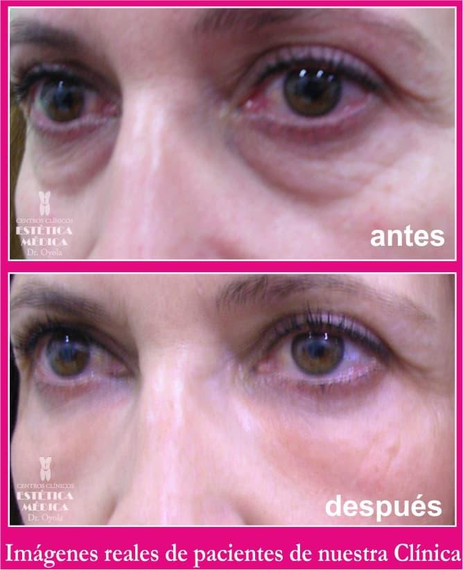 quitar bolsas ojos sin cirugia, como quitar bolsas de ojos sin cirugia, bolsas ojos tratamiento, tratamiento ojeras y bolsas en los ojos