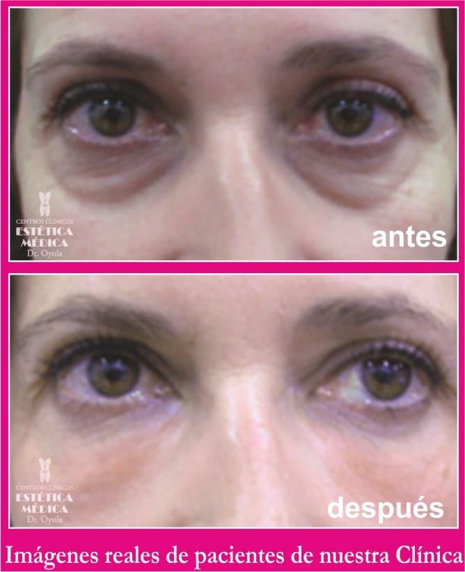 cirugia ojeras y bolsas precio, eliminar bolsas de los ojos sin cirugia