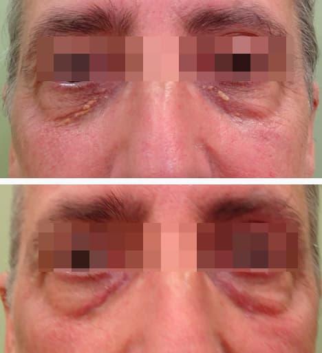 xantelasma masculino antes y después, tratamiento de xantelasma masculino con láser