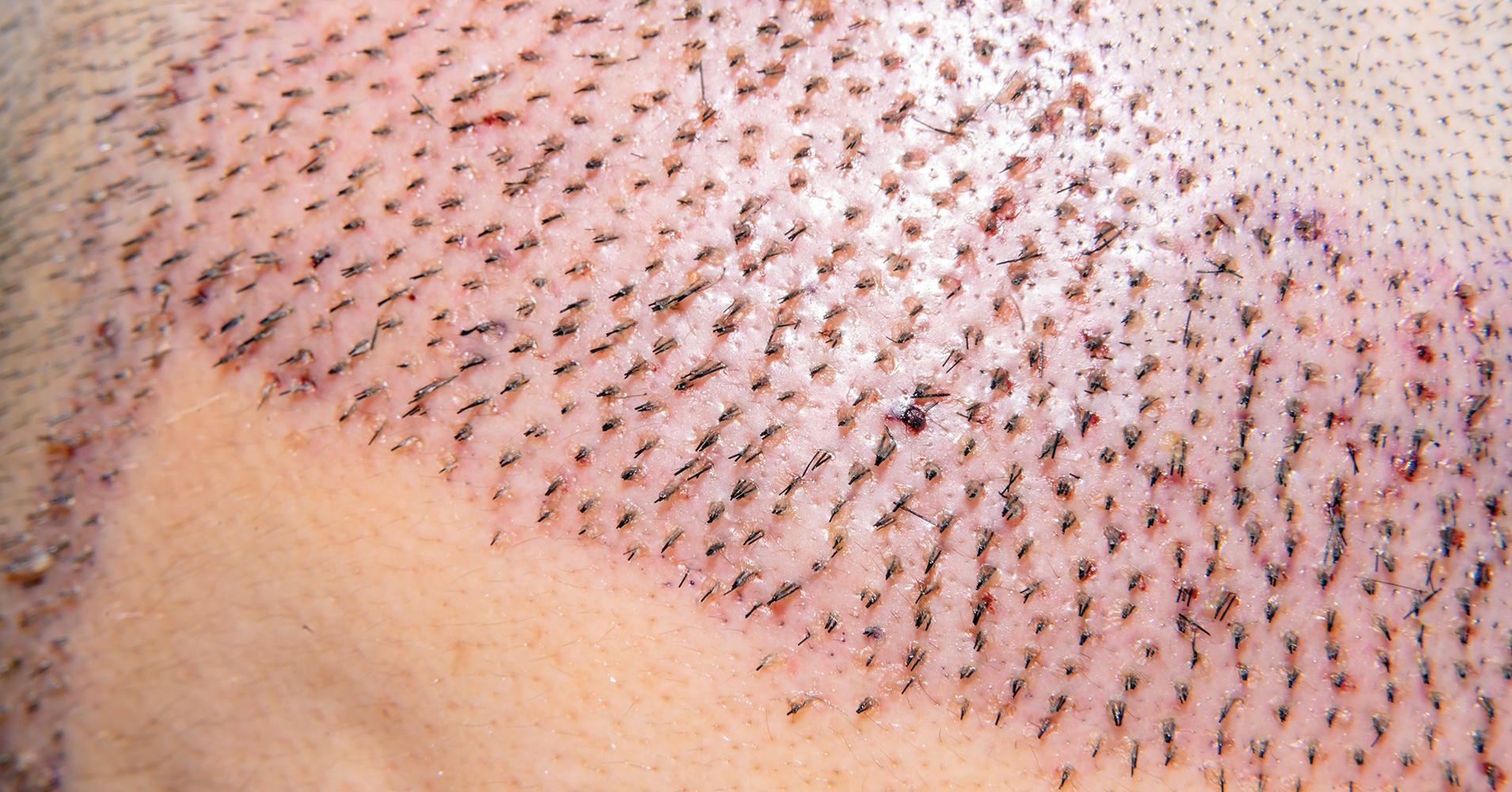 médicos especialistas en trasplante capilar, injerto capilar con resultado natural
